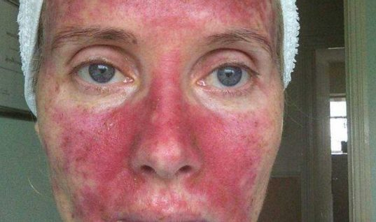 H ηλιοθεραπεία στην Κρήτη της… κατέστρεψε το πρόσωπο!